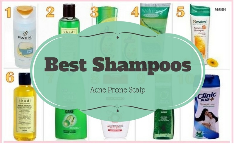 Best Shampoos For Acne Prone Scalp