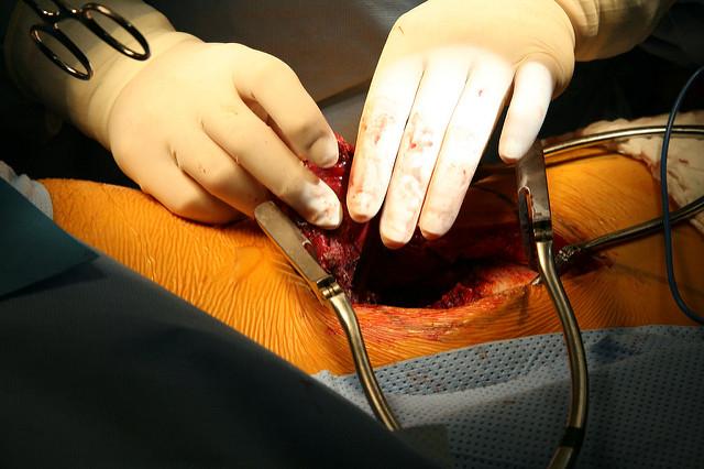 Phlebitis Surgery