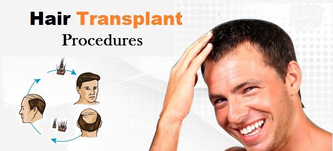 Hair Transplant Procedures