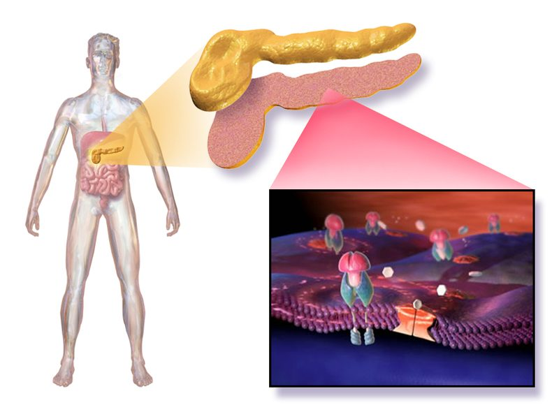 Diabetes can affect every part of the body