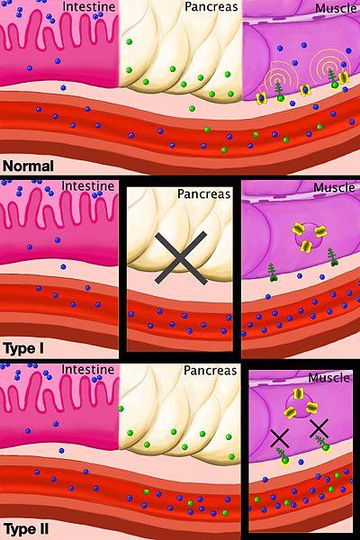 Lack of insulin