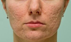 Connection between Acne and Large Pores