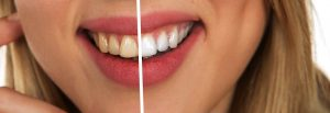 tooth 2414909 340