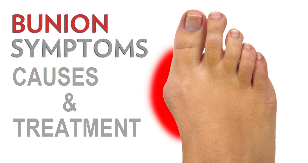 Bunions Causes, Symptoms, and Treatment