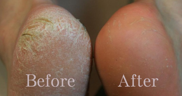 Mar102 3 Home Remedies for Calluses on Feet 1