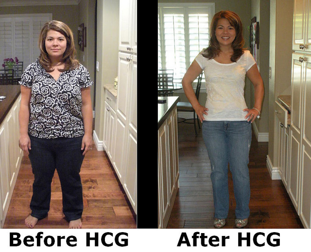 HCG Dieter before and after