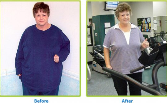 Bariatric Surgery: Know More