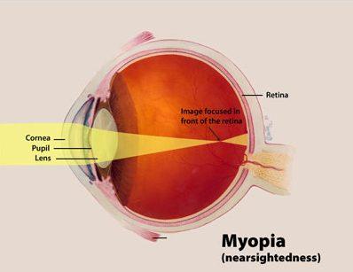 Dryness of Eyes