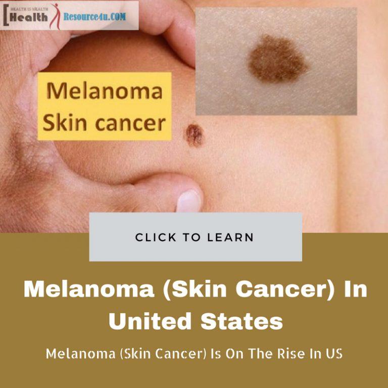 Melanoma (Skin Cancer)