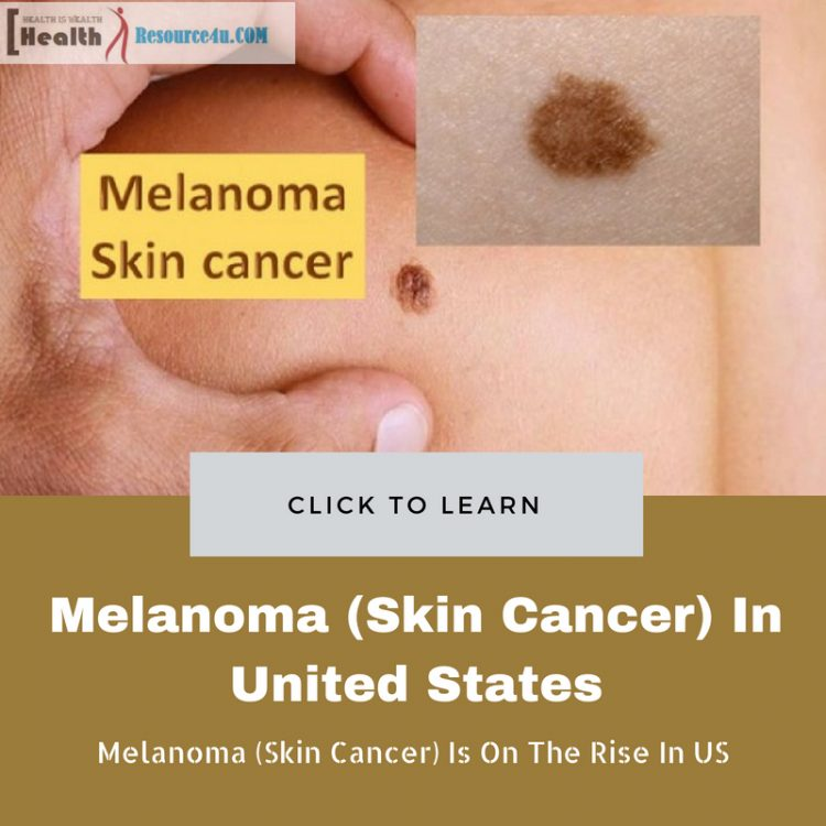 Melanoma (Skin Cancer)
