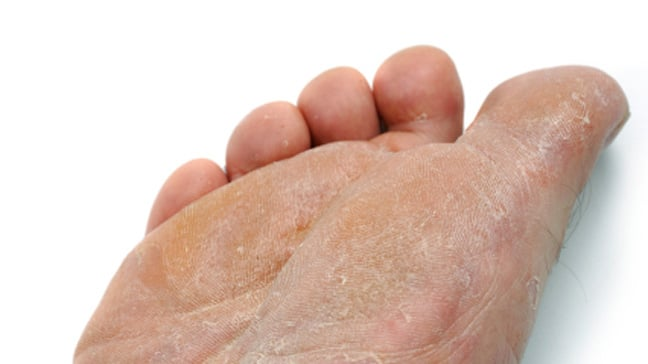 athletes foot sole