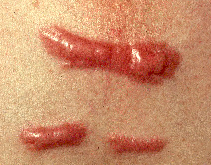 Hypertrophic and keloid Scars