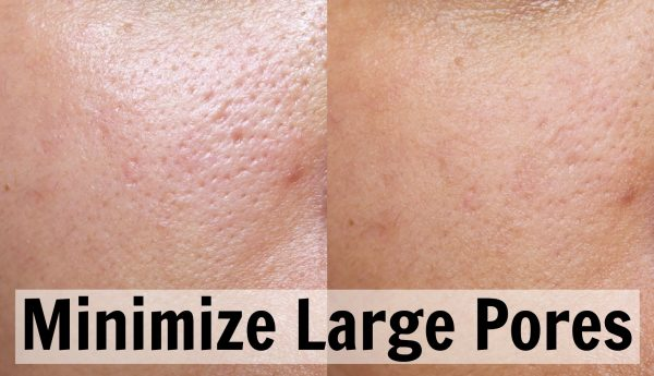 Some Tips for Minimizing Large Pores