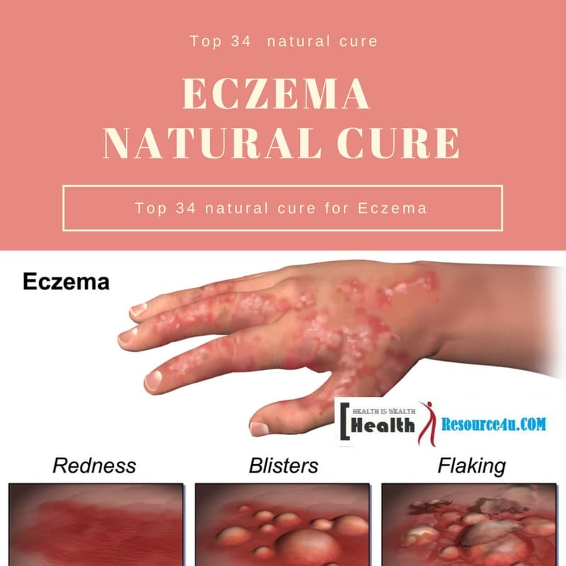 Eczema : Symptoms and Natural Remedies