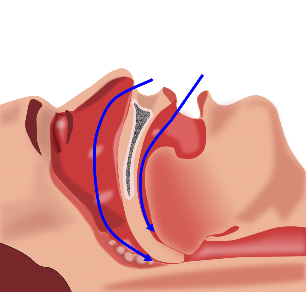 Carry Out nasal Exercises