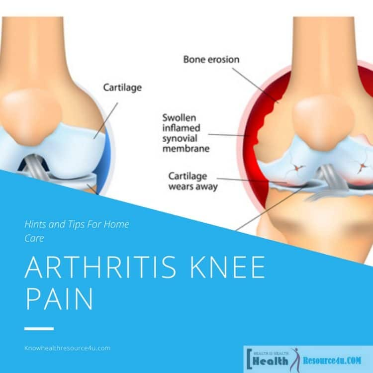 Arthritis Knee Pain : Hints and Tips For Home Care