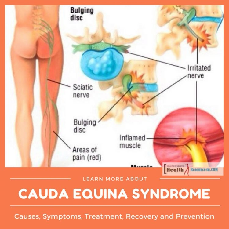 Cauda Equina Syndrome: Causes, Symptoms, Treatment ...