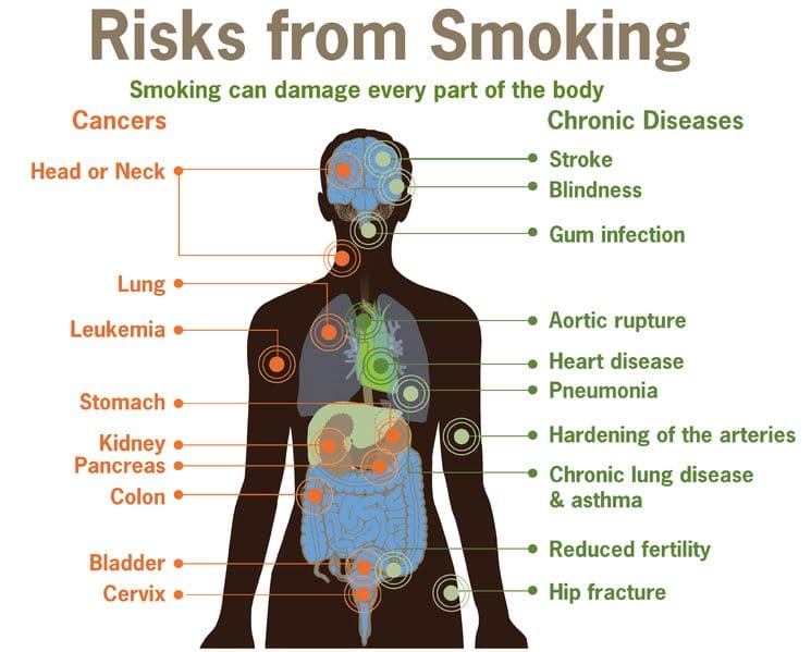 745px Risks form smoking smoking can damage every part of the body