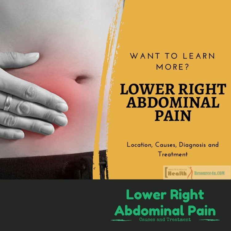 Lower Right Abdominal Pain Location, Causes, Diagnosis and Treatment