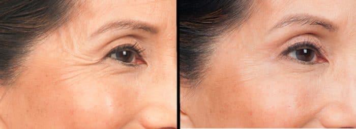 Remove Fine Lines on Skin: