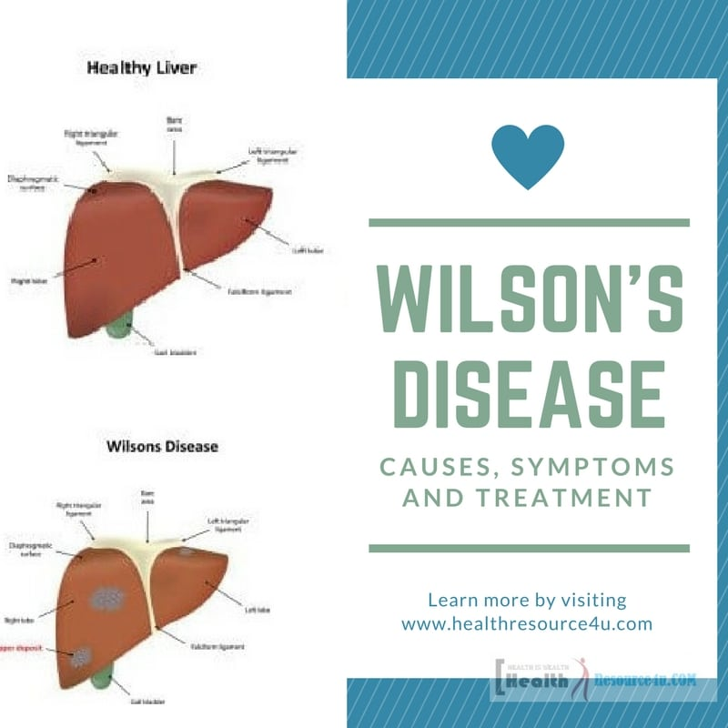 the causes symptoms and treatment of wilsons disease Cysts are sac-like structures that may be filled with gas, liquid, or solid materials read about different types of cysts, causes, symptoms, treatment, and removal.