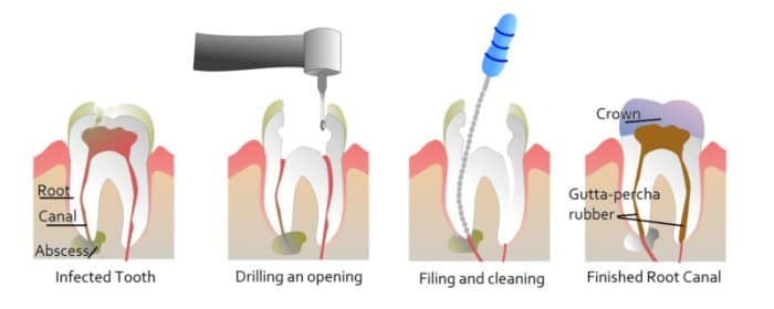 Special Tips for Avoiding Oral Health Issues: