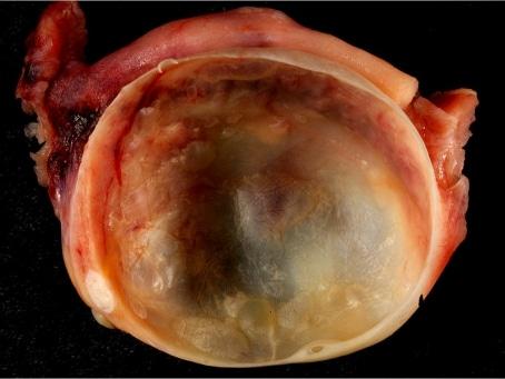 Ovary Cyst