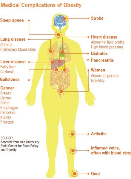 Obesity and Its Linkage to Hypogonadism