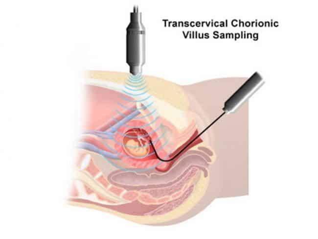 Benefits of CVS Pregnancy Test