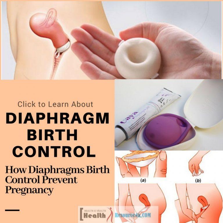 Diaphragms Birth Control Prevent Pregnancy