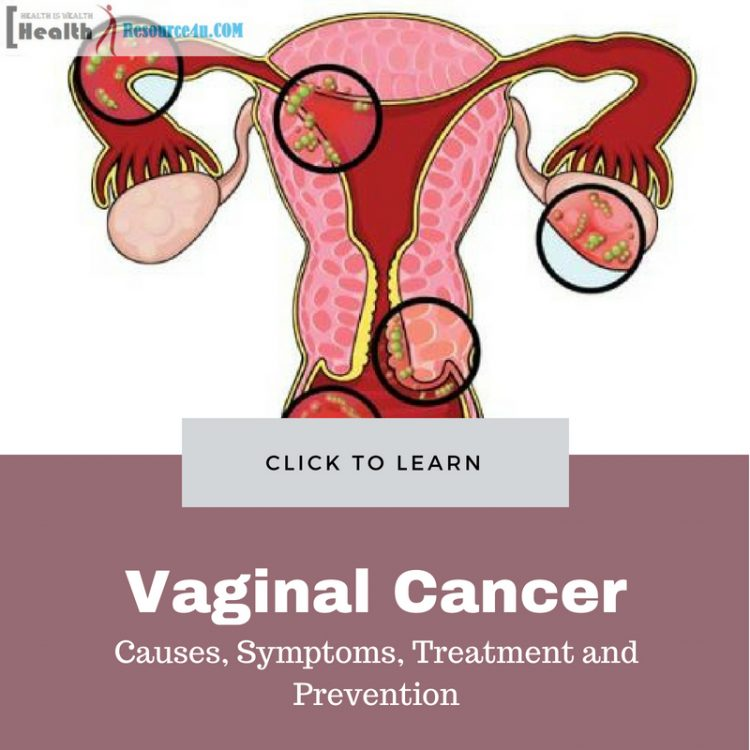 Vaginal Cancer