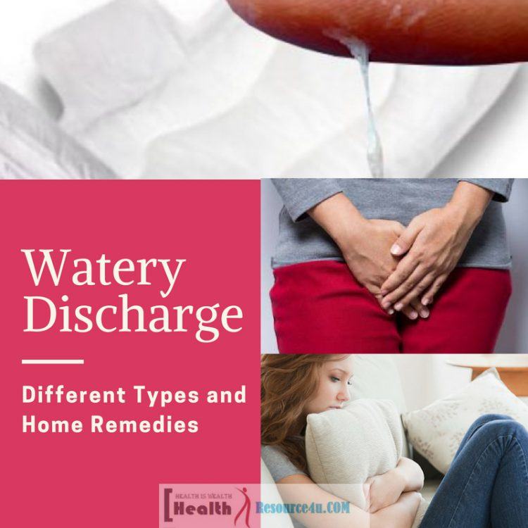 Watery Discharge