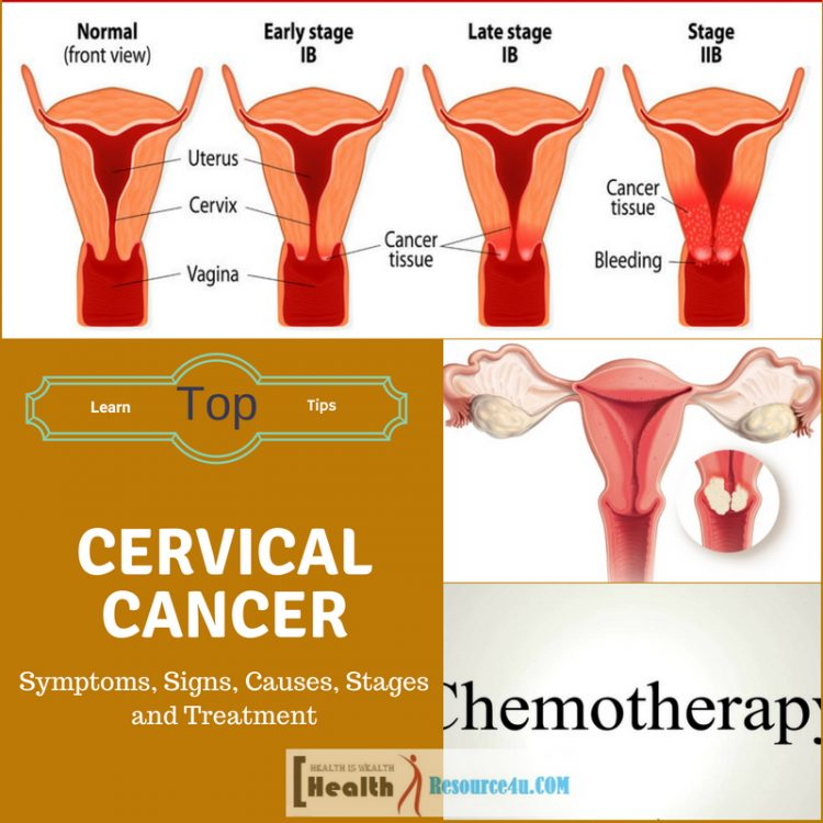 Cervical Cancer Causes Treatment