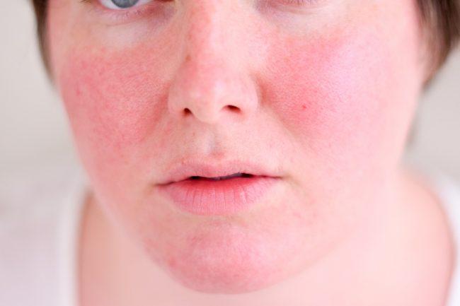skin-redness