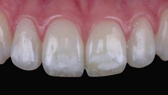 Dental Fluorosis Treatment