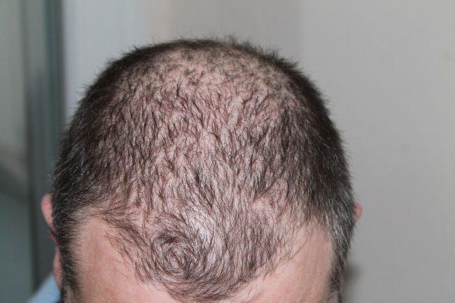 Hair Transplant Restoration Surgery