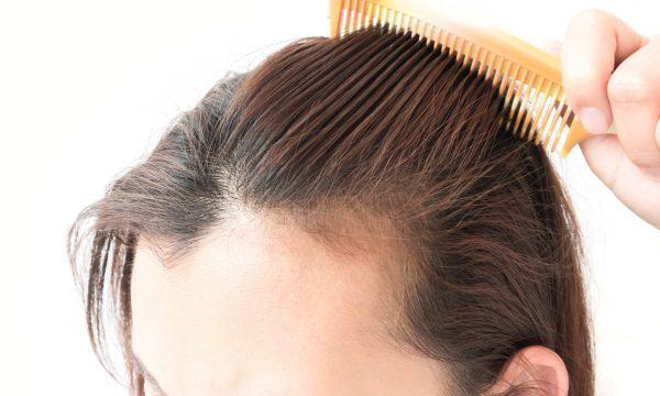 natural tips to treat hair loss