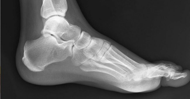 treatment of metatarsal stress fracture