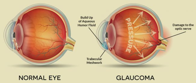 facts about glaucoma