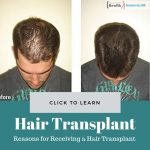 Reasons for Receiving a Hair Transplant