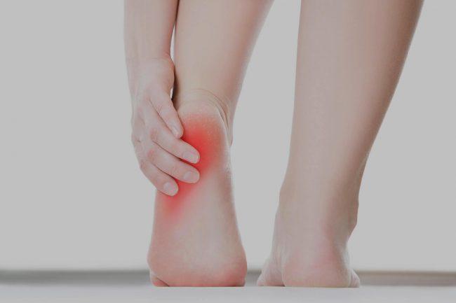 treatment of heel pain