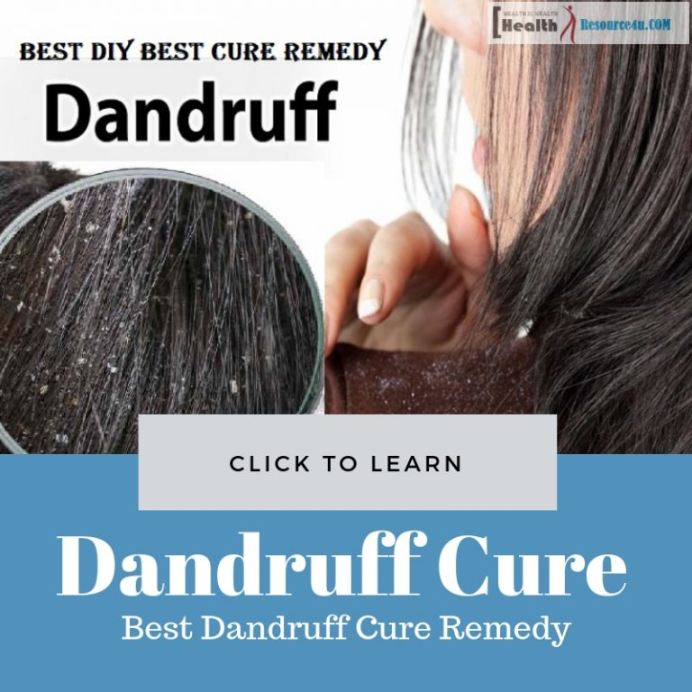 Best Dandruff Cure Remedy
