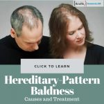 Hereditary-Patterned Baldness