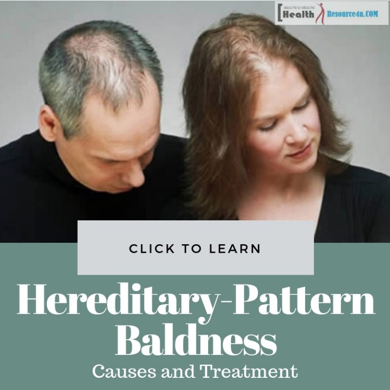 Hereditary-Patterned Baldness