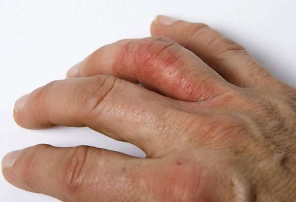 symptoms of dactylitis