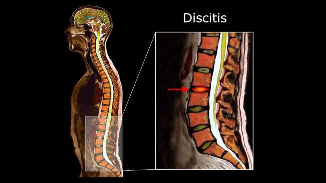symptoms of discitis