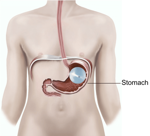 gastric balloons are the best way to lose weight