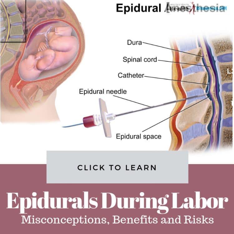 Epidurals During Labor