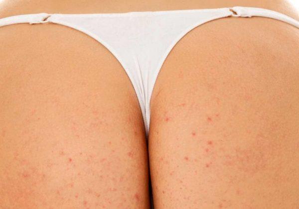 butt acne