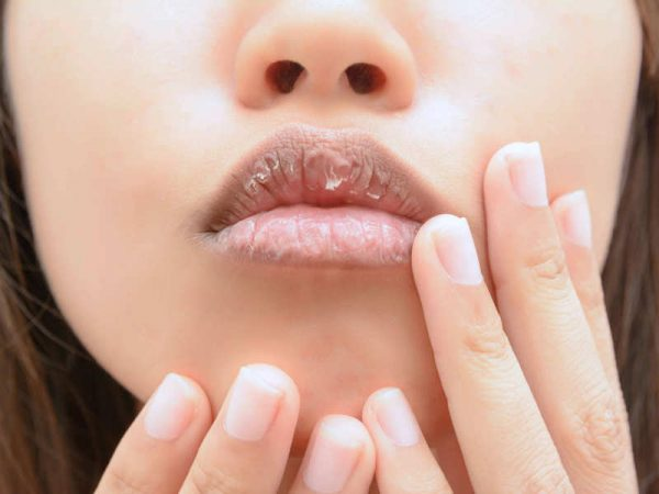 ways to get rid of dry lips